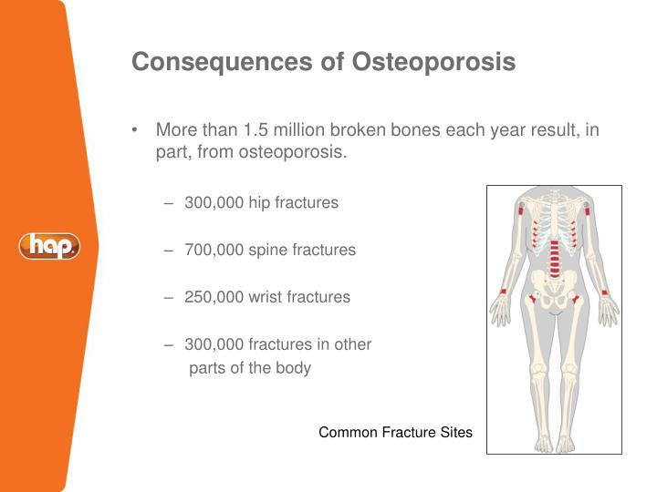 Consequences of Osteoporosis