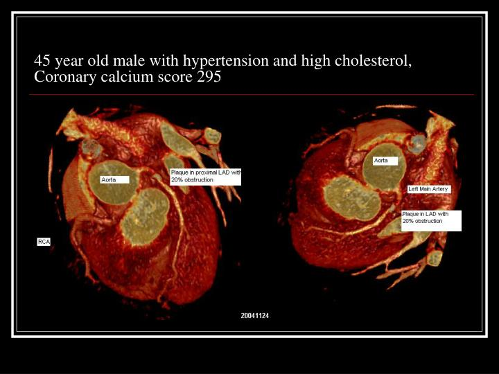 45 year old male with hypertension and high cholesterol, Coronary calcium score 295