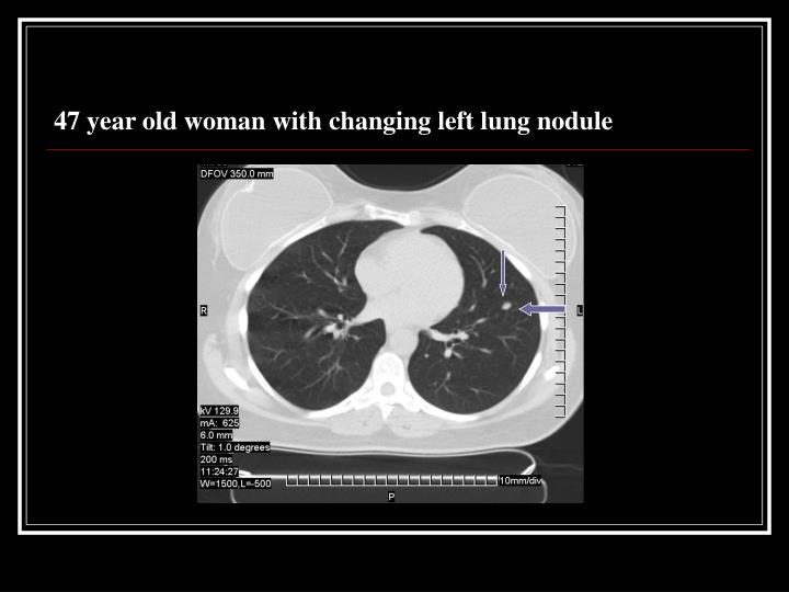 47 year old woman with changing left lung nodule