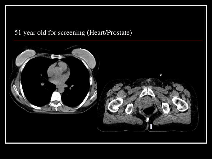 51 year old for screening (Heart/Prostate)