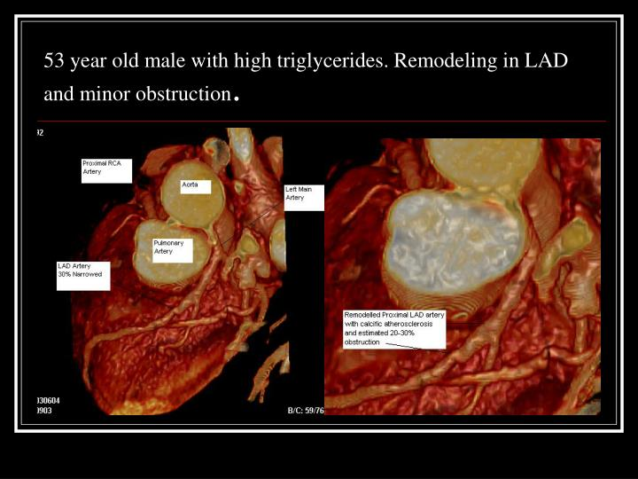 53 year old male with high triglycerides. Remodeling in LAD and minor obstruction