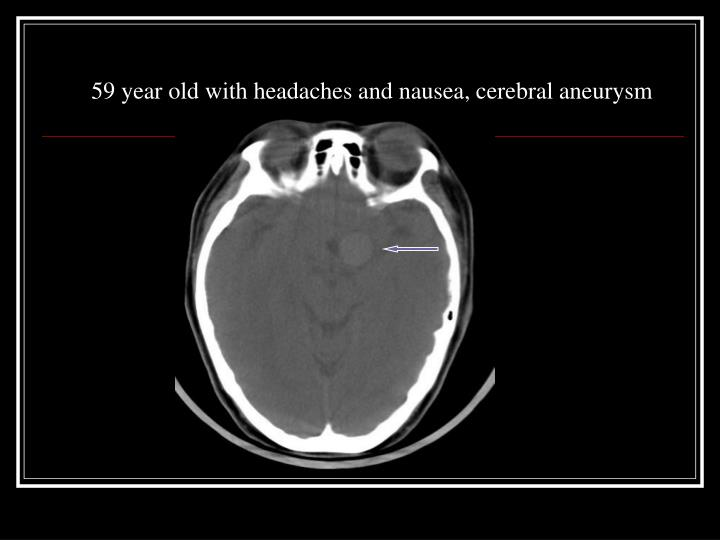 59 year old with headaches and nausea, cerebral aneurysm