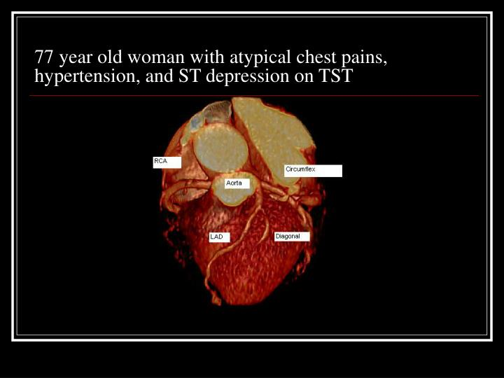 77 year old woman with atypical chest pains, hypertension, and ST depression on TST