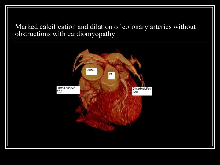 Marked calcification and dilation of coronary arteries without obstructions with cardiomyopathy