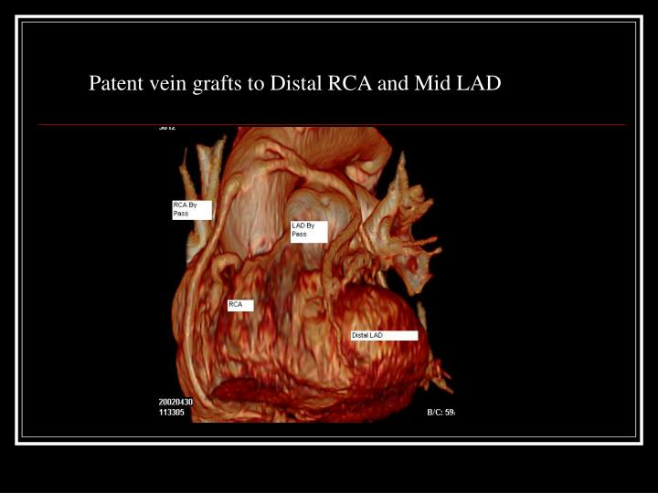 Patent vein grafts to Distal RCA and Mid LAD