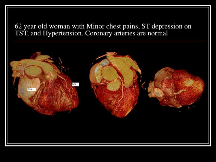62 year old woman with Minor chest pains, ST depression on TST, and Hypertension. Coronary arteries are normal