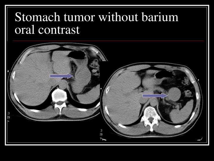Stomach tumor without barium oral contrast