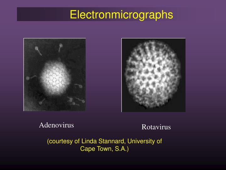 Electronmicrographs