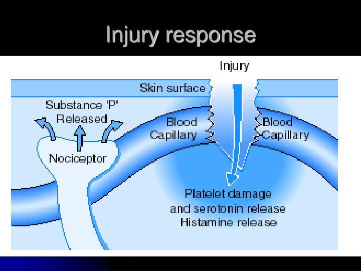 Injury response
