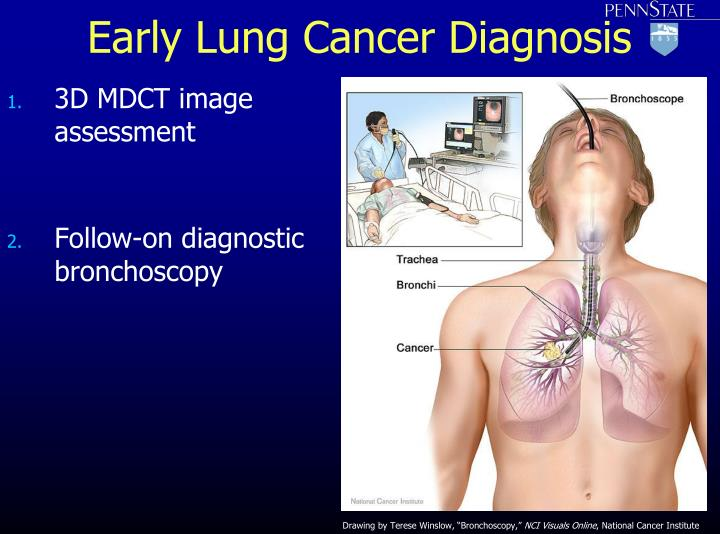 Early Lung Cancer Diagnosis