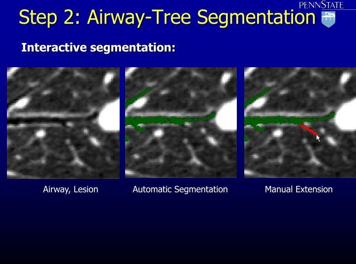 Step 2: Airway-Tree Segmentation