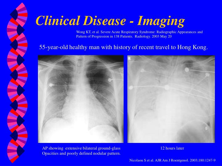 Clinical Disease - Imaging