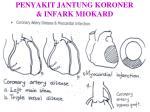 penyakit jantung koroner infark miokard