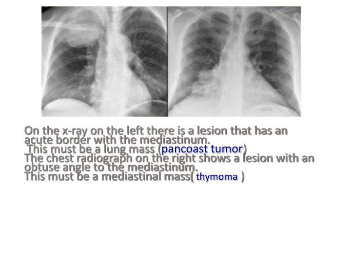On the x-ray on the left there is a lesion that has an acute border with the mediastinum.