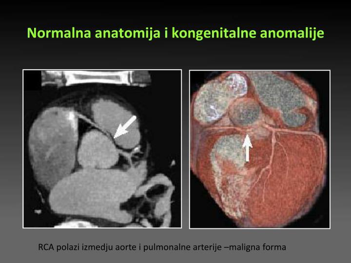 Normalna anatomija i kongenitalne anomalije