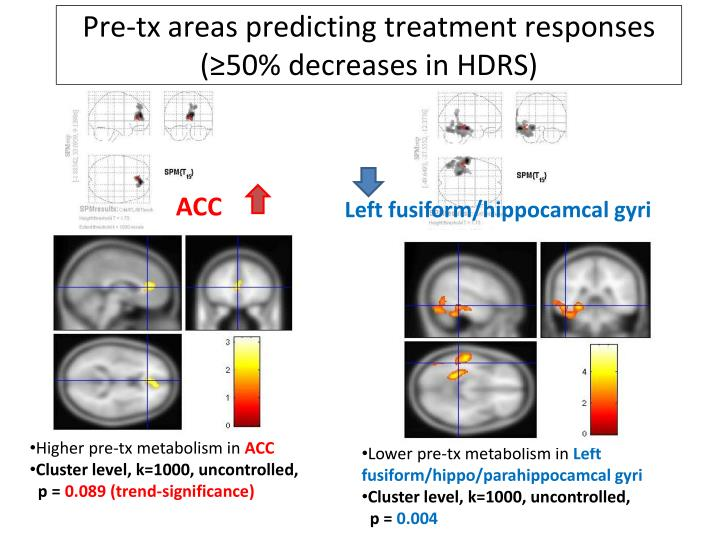Pre-tx areas predicting treatment responses (≥50% decreases in HDRS)