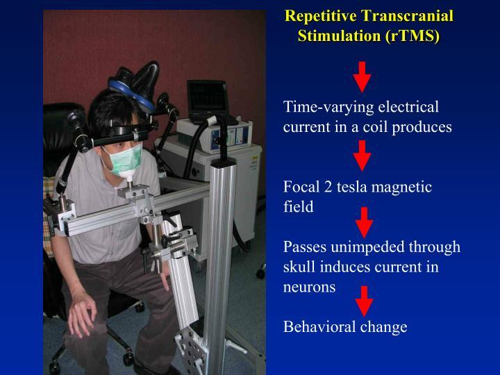 Repetitive Transcranial