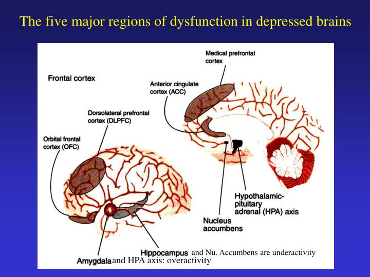 The five major regions of dysfunction in depressed brains