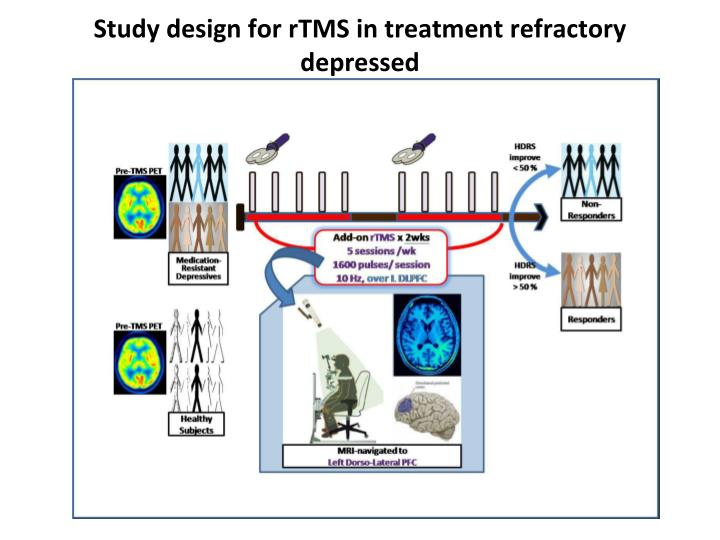 Study design for rTMS in treatment refractory depressed