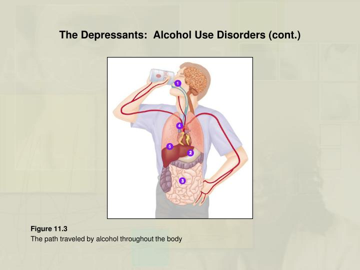 The Depressants:  Alcohol Use Disorders (cont.)