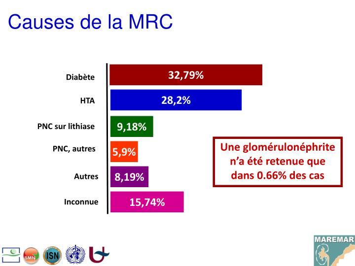 Causes de la MRC