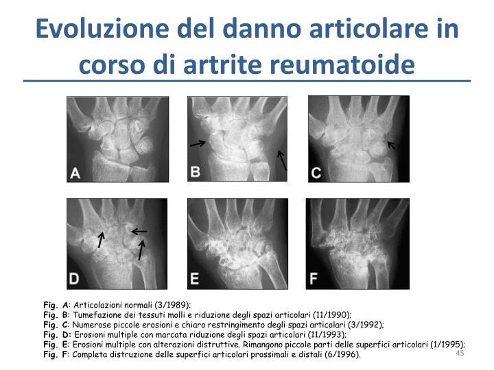 Evoluzione del danno articolare in corso di artrite reumatoide
