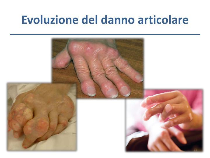 Evoluzione del danno articolare