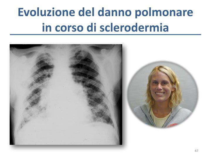 Evoluzione del danno polmonare in corso di sclerodermia