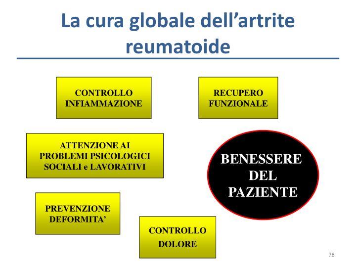 La cura globale dell'artrite reumatoide