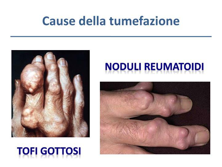 Cause della tumefazione