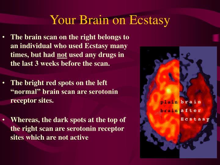 Your Brain on Ecstasy