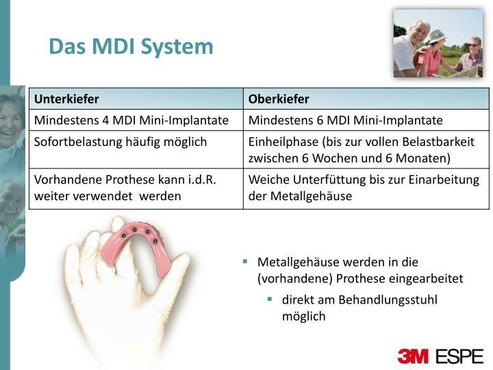 Das MDI System