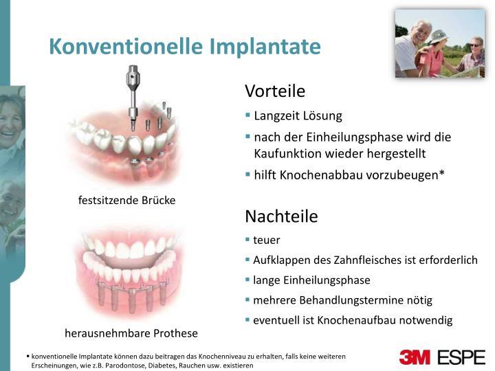 Konventionelle Implantate