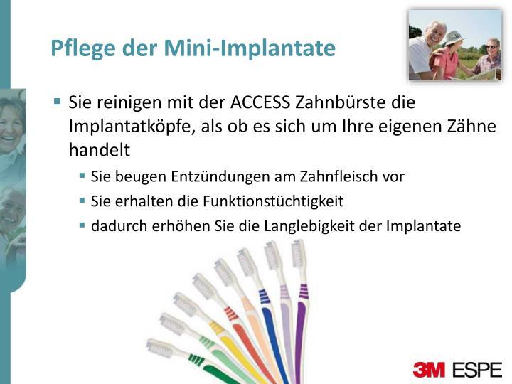 Pflege der Mini-Implantate