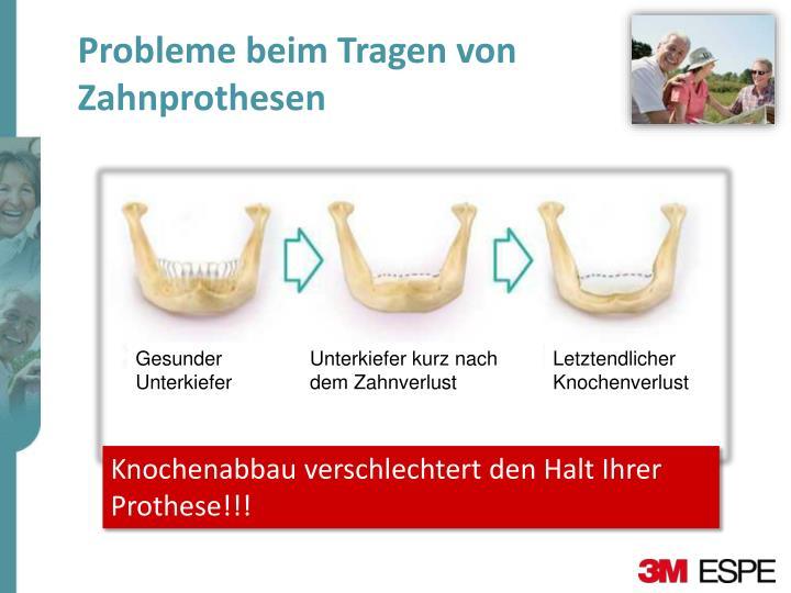 Probleme beim Tragen von Zahnprothesen