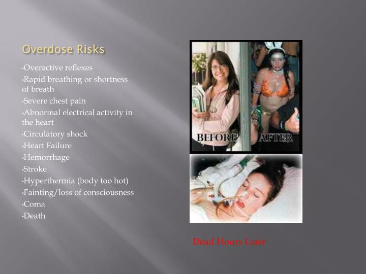 Overdose Risks