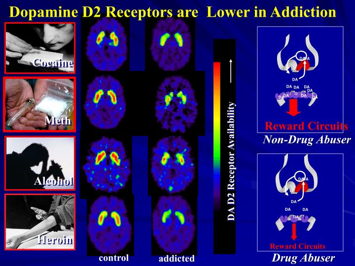 Dopamine D2 Receptors are  Lower in Addiction