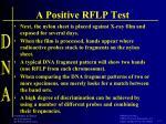 a positive rflp test1