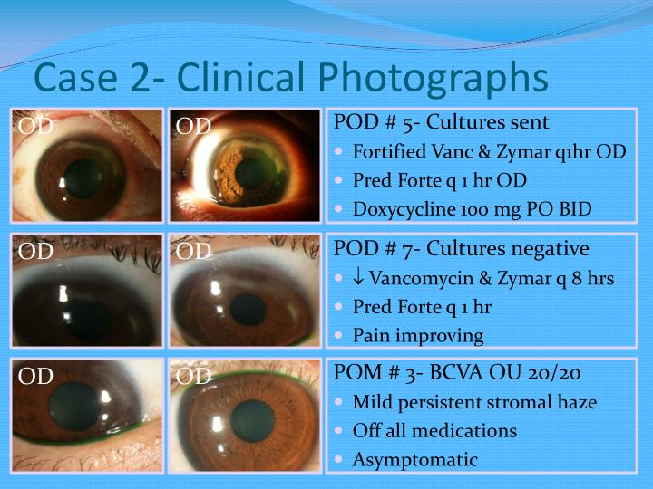 Case 2- Clinical Photographs
