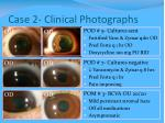 case 2 clinical photographs
