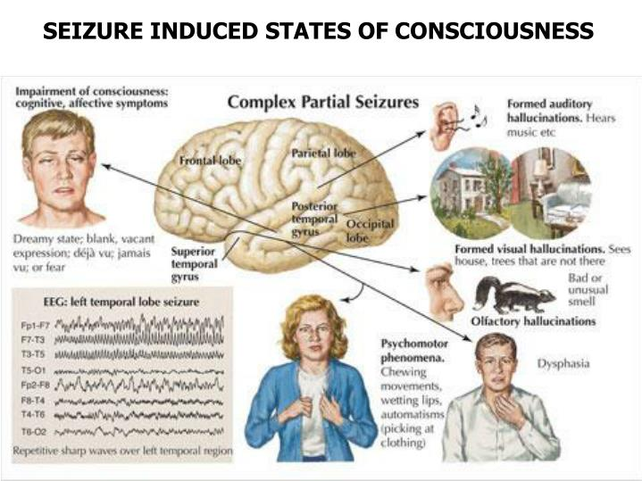 SEIZURE INDUCED STATES OF CONSCIOUSNESS