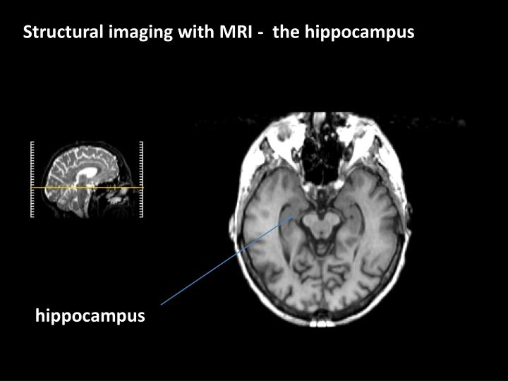 Structural imaging with MRI -  the hippocampus