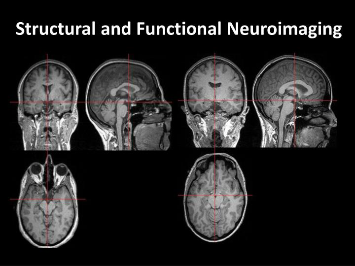 Structural and Functional Neuroimaging