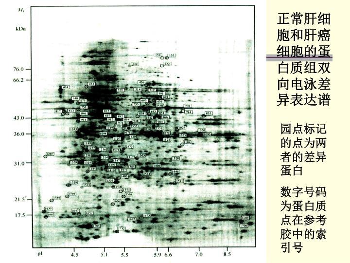 正常肝细胞和肝癌细胞的蛋白质组双向电泳差异表达谱