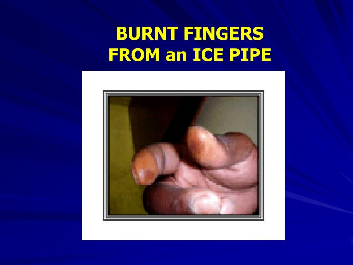 BURNT FINGERS