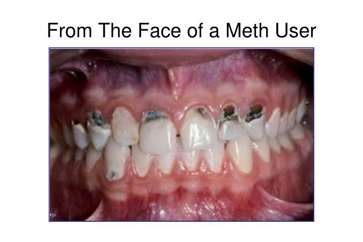 From The Face of a Meth User