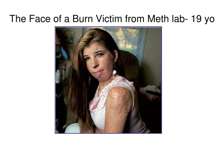 The Face of a Burn Victim from Meth lab- 19 yo