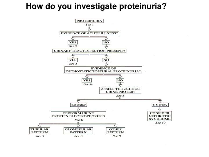 How do you investigate proteinuria?