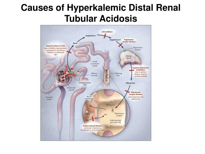Causes of Hyperkalemic Distal Renal Tubular Acidosis