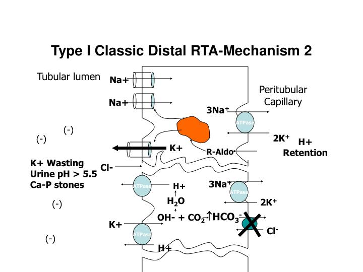 Type I Classic Distal RTA-Mechanism 2